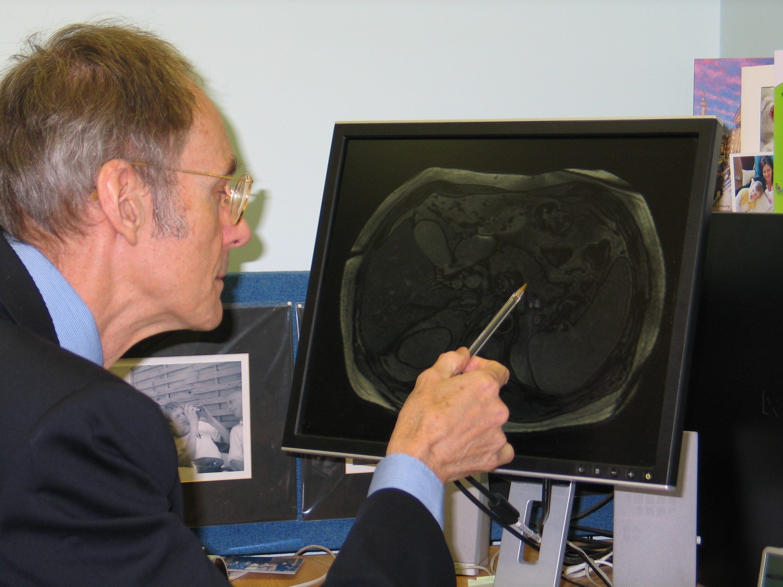 Prof Roy Taylor looking at an MRI scan on a computer screen